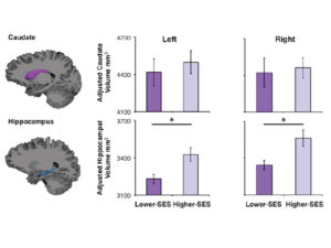 Bar graphs comparing hippocampal volume by socioeconomic status