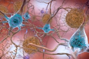 Blue interconnected neurons and brown clumps on a pink background