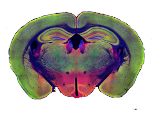 colorful mouse brain with restored brain function